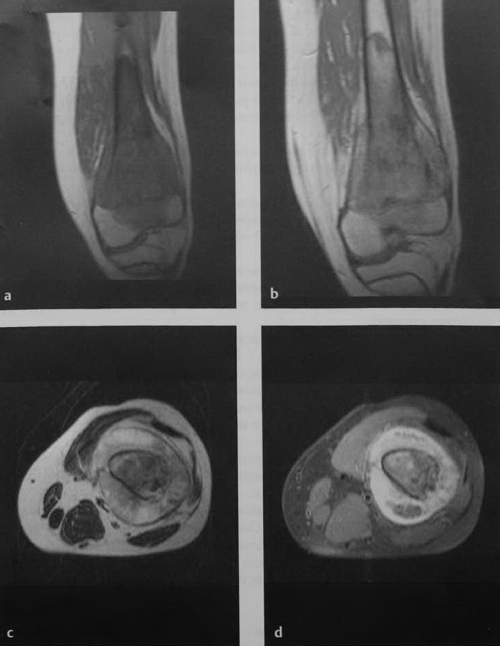 Снимки МРТ и КТ. Остеосаркома