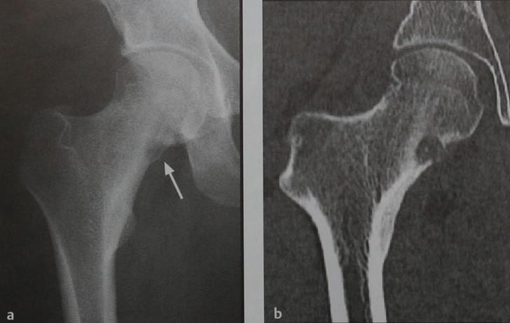 Снимки МРТ и КТ. Остеоид  остеома