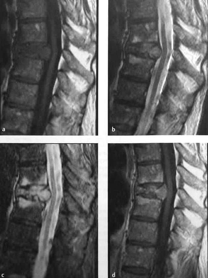 Снимки МРТ и КТ. Неопластический компрессионный перелом позвоночник