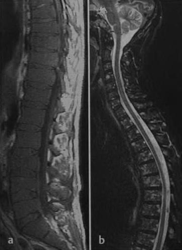 Снимки МРТ и КТ. Множественная миелома ортопедия