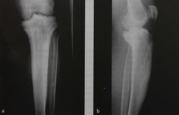 Снимки МРТ и КТ. Болезнь Педжета