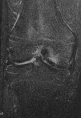 Снимки МРТ и КТ. Рассекающий остеохондрит