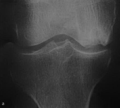 Остеонекроз коленного сустава