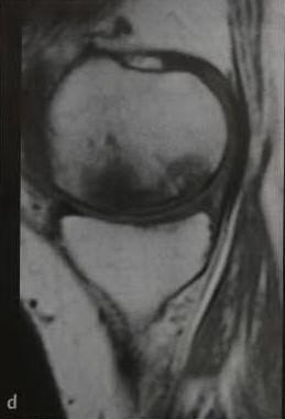 Снимки МРТ и КТ. Остеонекроз коленного сустава