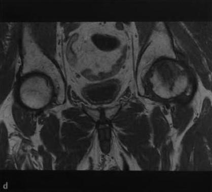 Снимки МРТ и КТ. Некроз головки бедренной кости
