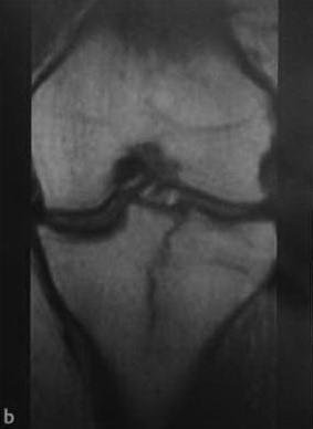 Снимки МРТ и КТ. Скрытые переломы