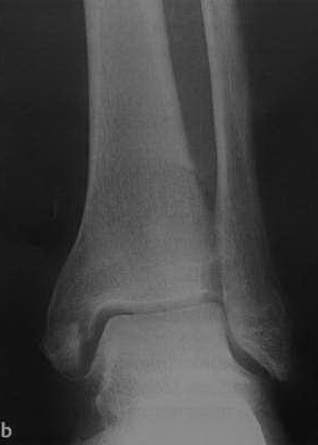 Снимки МРТ и КТ. Повреждения голеностопного сустава