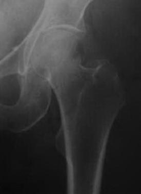 Снимки МРТ и КТ. Перелом шейки бедренной кости