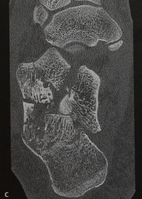 Снимки МРТ и КТ. Перелом пяточной кости