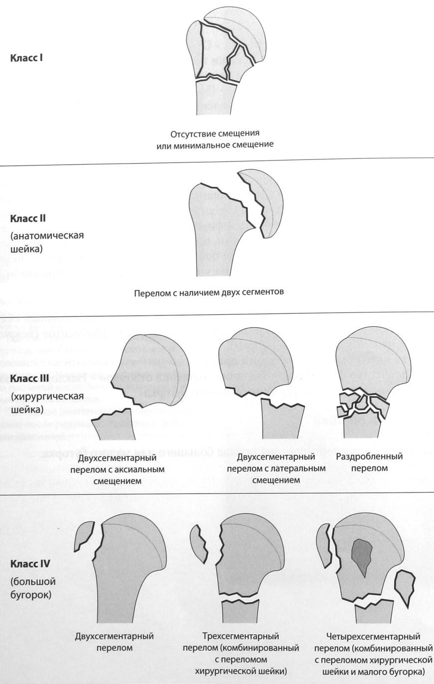 Снимки МРТ и КТ. Перелом проксимальной части плечевой кости