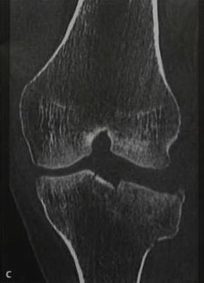 Снимки МРТ и КТ. Перелом плато большеберцовой кости
