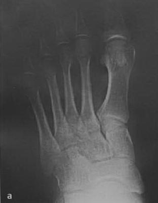 Перелом основания пятой плюсневой кости