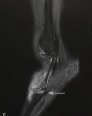 Снимки МРТ и КТ. Перелом основания пятой плюсневой кости