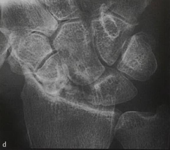 Снимки МРТ и КТ. Перелом ладьевидной кости