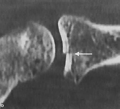 Снимки МРТ и КТ. Перелом головки лучевой кости