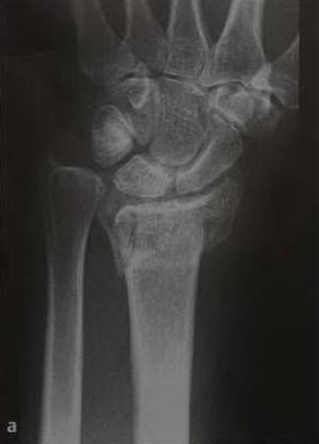 Снимки МРТ и КТ. Дистальный перелом лучевой кости