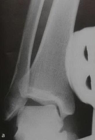 Снимки МРТ и КТ. Разрыв латеральной связки голеностопного сустава