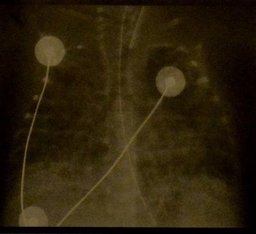 Снимки МРТ и КТ. Бронхопульмональная дисплазия