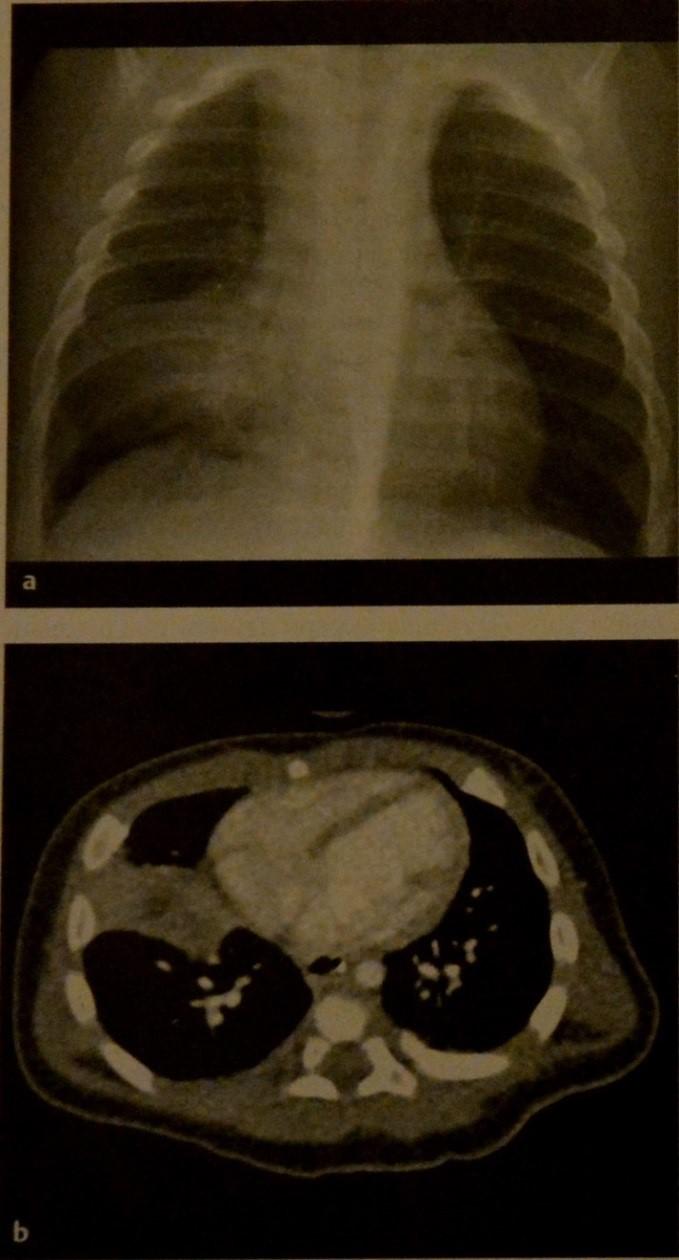 Снимки МРТ и КТ. Туберкулез