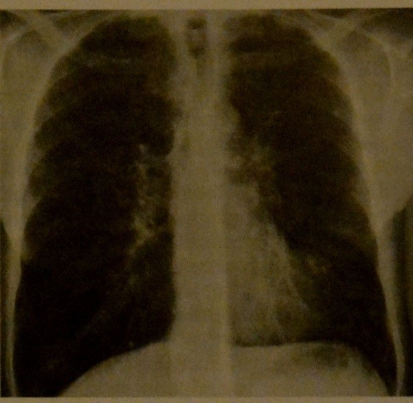 Снимки МРТ и КТ. Кистозный фиброз