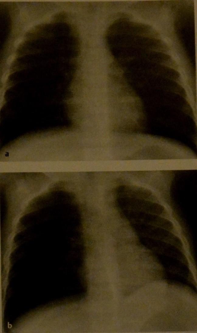 Снимки МРТ и КТ. Аспирация инородного тела