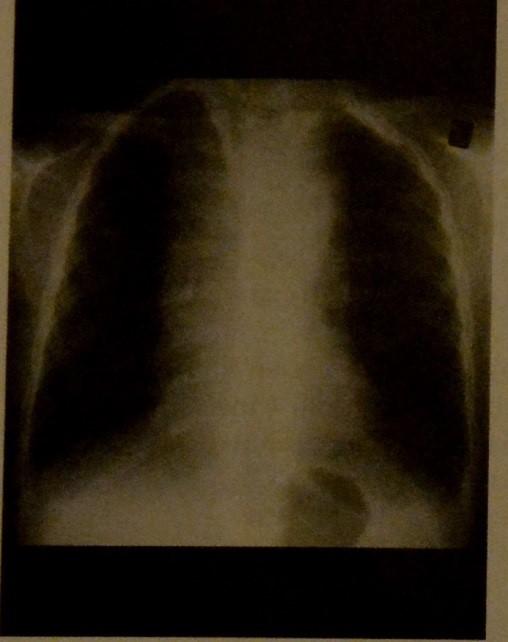 Снимки МРТ и КТ. Лимфома Ходжкина грудной клетки