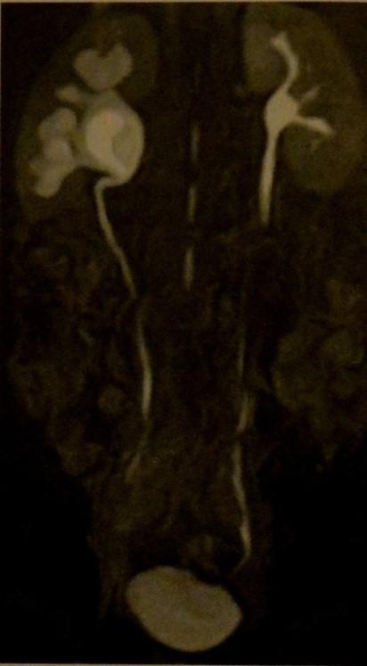Обструкция мочеточниково-лоханочного соединения