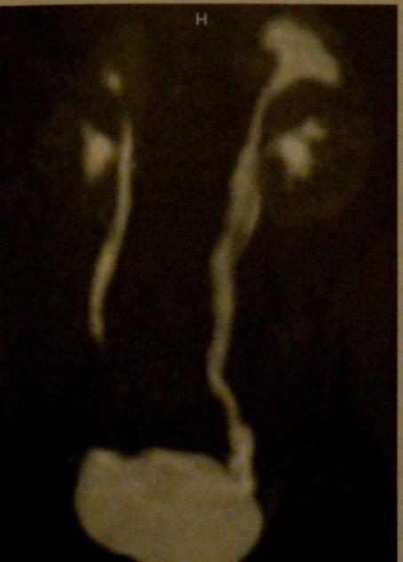 Снимки МРТ и КТ. Удвоение почки