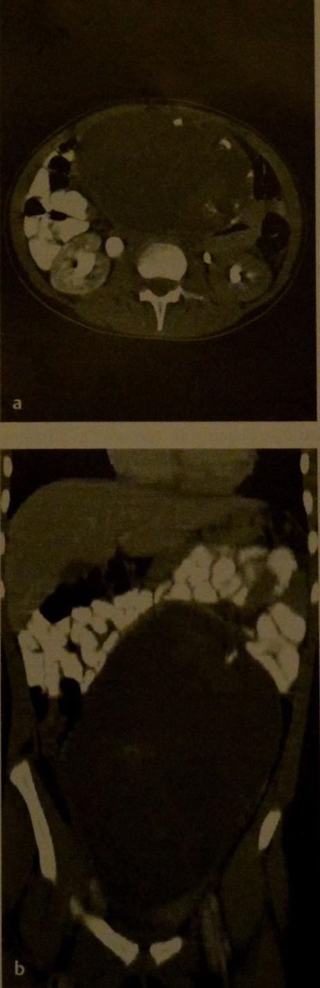 Тератома яичника у ребенка