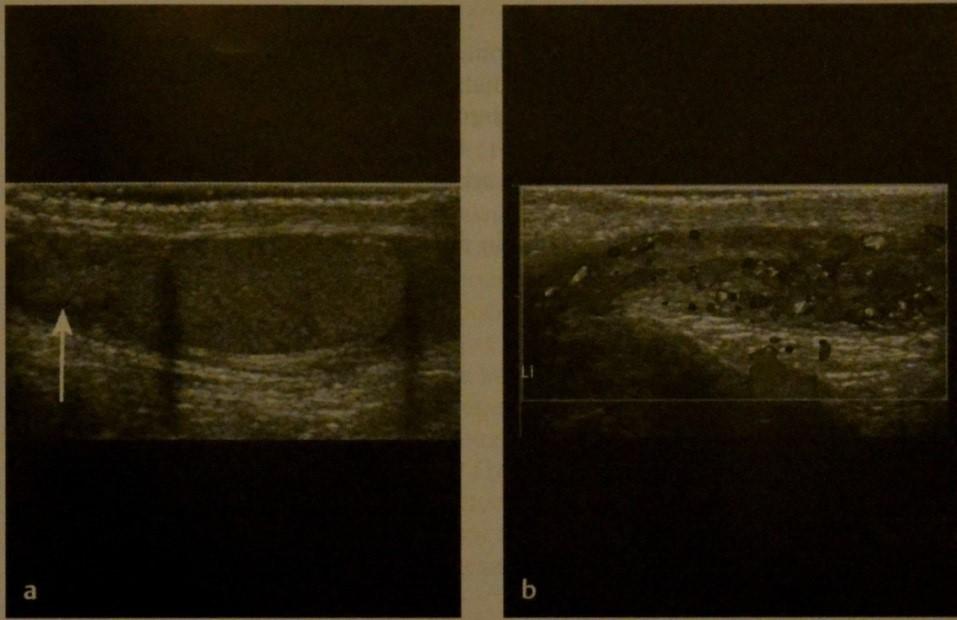 Снимки МРТ и КТ. Эпидидимит