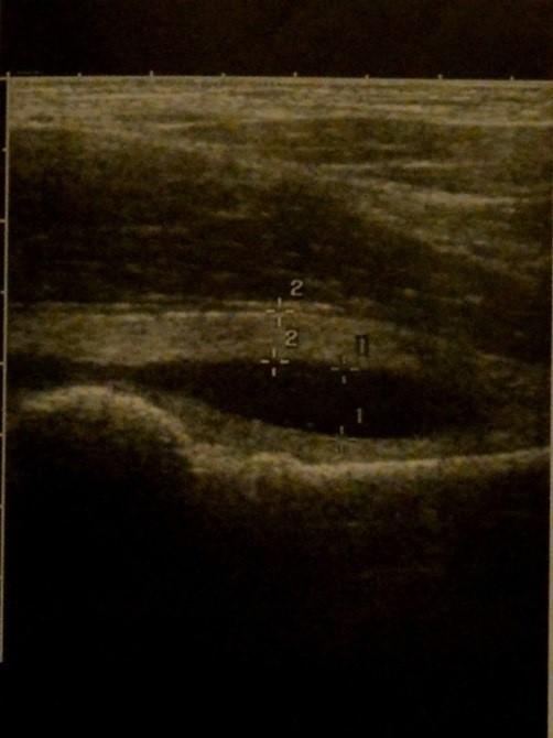 Транзиторный синовит тазобедренных суставов