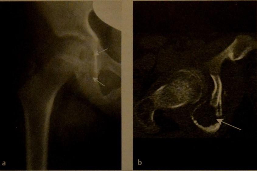 Снимки МРТ и КТ. Гистиоцитозы X