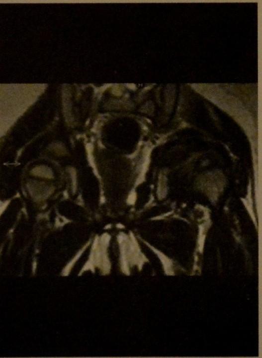 Снимки МРТ и КТ. Дисплазия тазобедренного сустава у детей