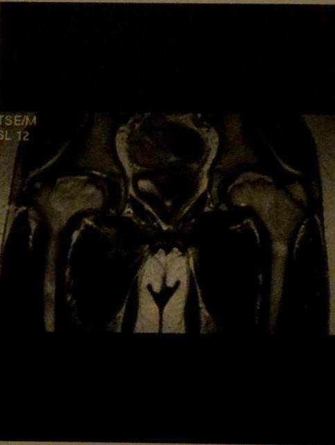 Снимки МРТ и КТ. Болезнь Легг- Кальве-Пертеса