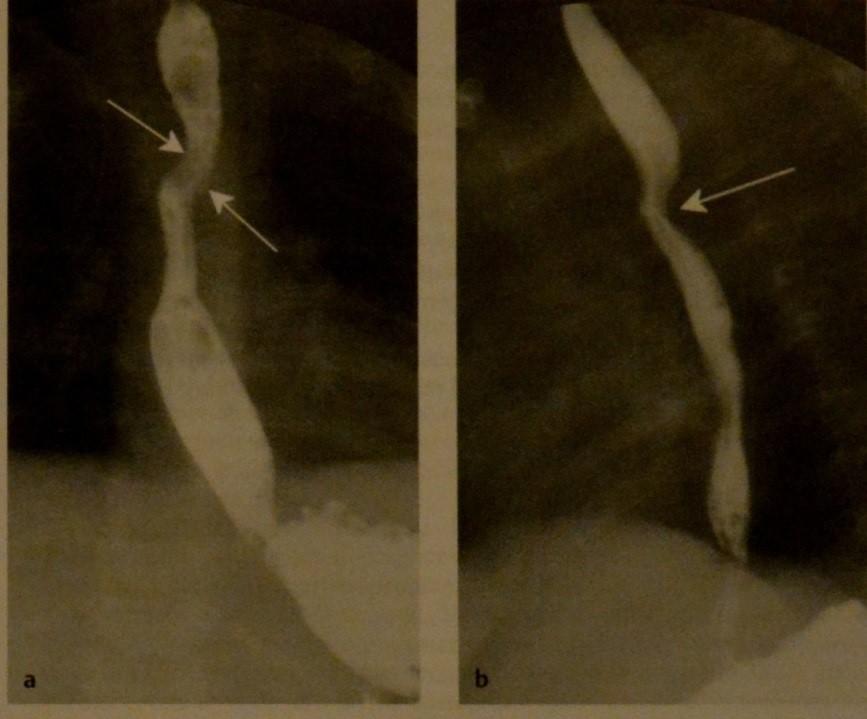 Снимки МРТ и КТ. Двойная дуга аорты