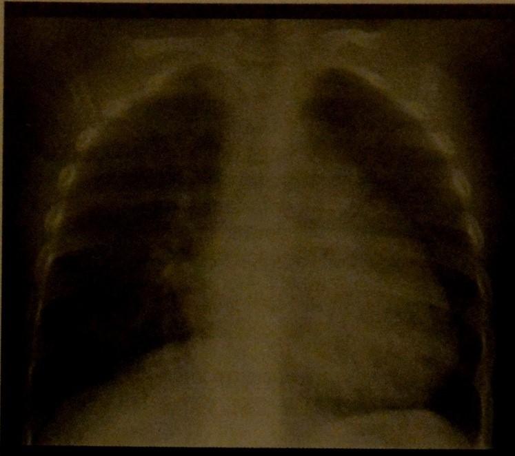 Снимки МРТ и КТ. Дефект межпредсердной перегородки у детей
