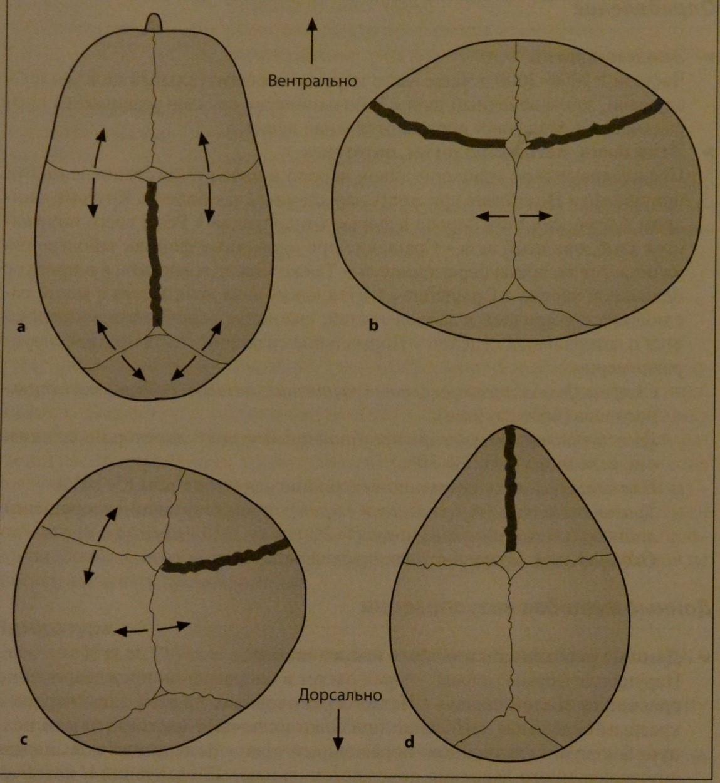 Снимки МРТ и КТ. Краниосиностоз у детей