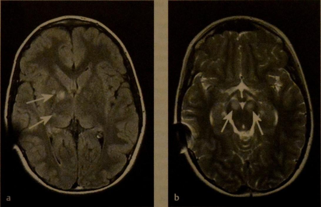 Снимки МРТ и КТ. Нейрокожный синдром у детей