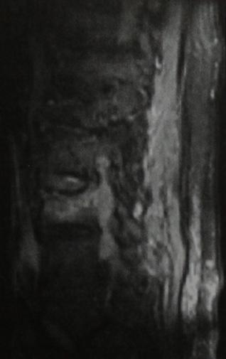 Снимки МРТ и КТ. Метастазы в кости