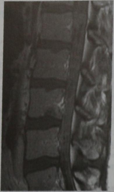 Снимки МРТ и КТ. Метастазы в мозговые оболочки и спинной мозг