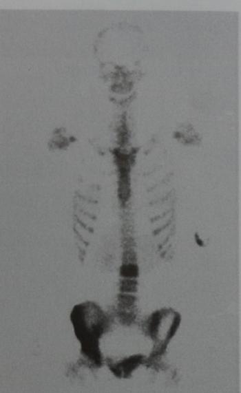 Снимки МРТ и КТ. Лимфомы