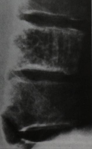 Снимки МРТ и КТ. Гемангиома