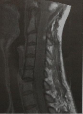 Снимки МРТ и КТ. Гемангиобластома