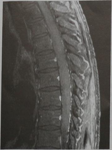 Снимки МРТ и КТ. Астроцитома