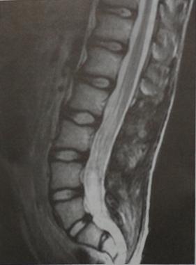 Снимки МРТ и КТ. Эпендимома