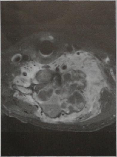 Снимки МРТ и КТ. Аневратическая костная киста