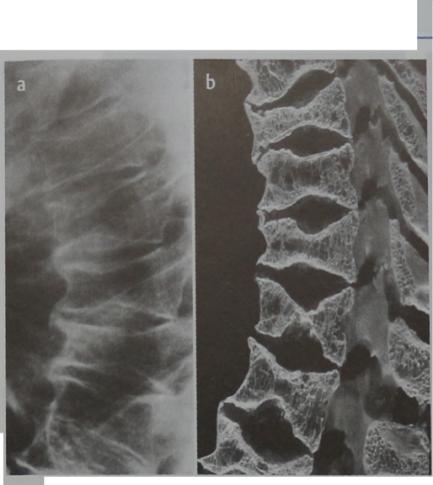 Снимки МРТ и КТ. Кифоз
