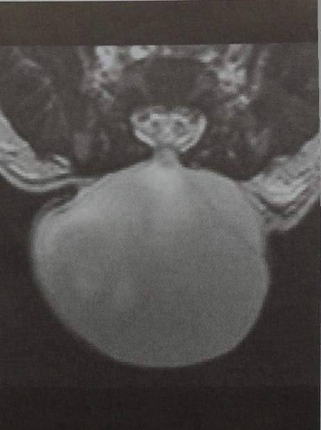 Снимки МРТ и КТ. Менингоцеле / Миеломенингоцеле
