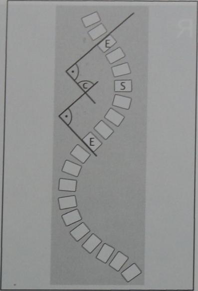 Снимки МРТ и КТ. Сколиоз