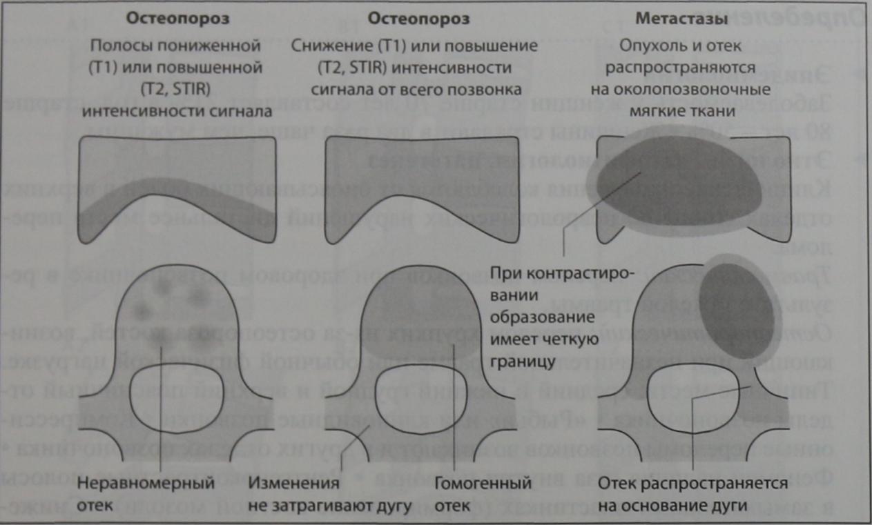 Снимки МРТ и КТ. Переломы позвоночника: причины